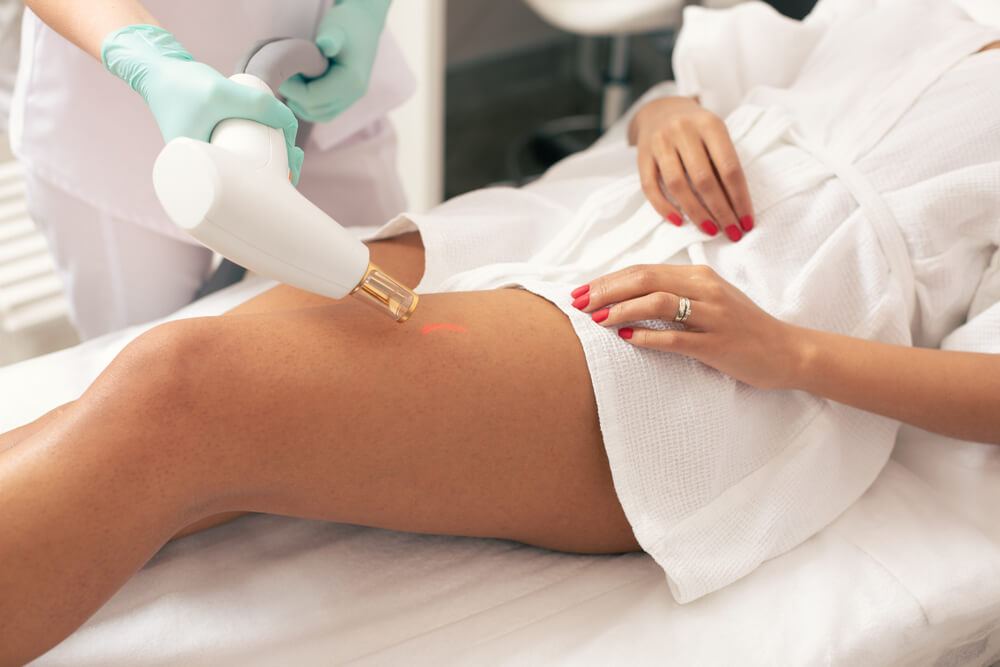 Laser treatment on leg for stretch marks